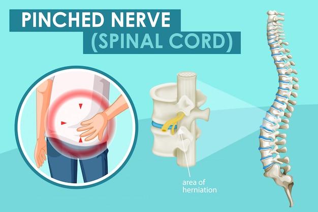 Diagram met beknelde zenuw bij de mens