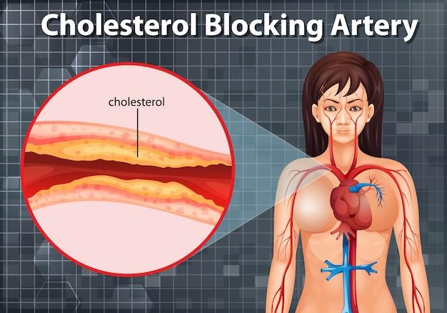 Diagram met cholesterolblokkerende slagader in het menselijk lichaam
