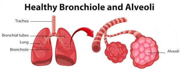 Diagram met gezonde bronchioli en longblaasjes