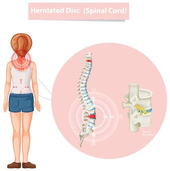 Diagram met hernia