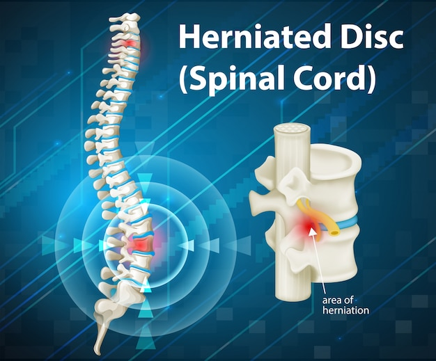 Diagram met herniated disc