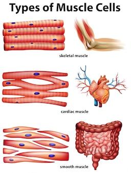 Diagram met typen spiercellen