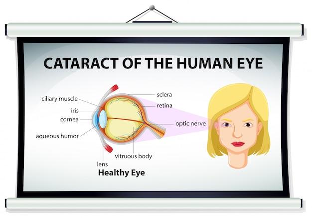 Diagram van cataract in menselijk oog
