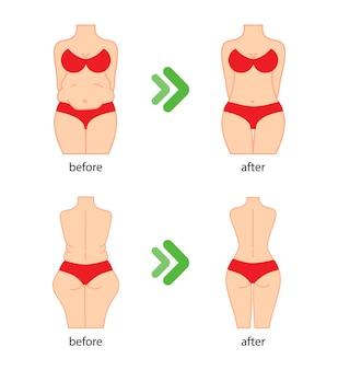Dik en slank vrouwenfiguur voor en na dieetfitness of liposuctie