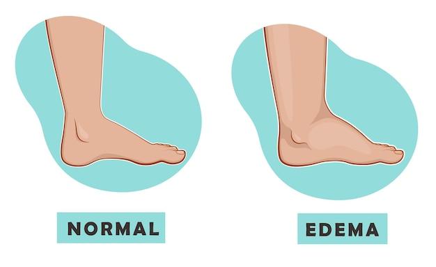 Een gezwollen voet en enkel en een normale voet.