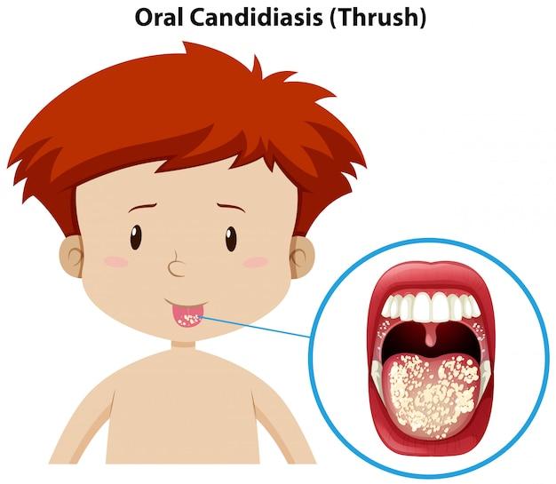 Een jonge jongen met orale candidiasis