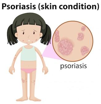 Een meisje havimg psoriasis op de huid