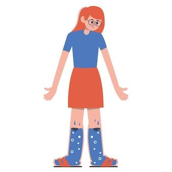 Een meisje met gezwollen voeten. benen gevuld met lymfe.