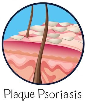 Een menselijke anatomie plaque psoriasis