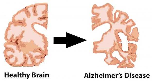 Een menselijke anatomie van hersenen