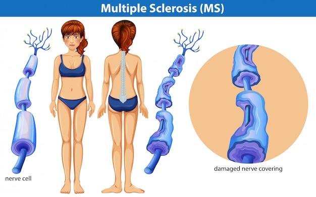 Een menselijke anatomie van multiple sclerose