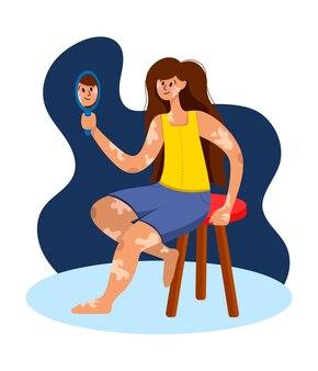 Een mooi meisje met vitiligo zit en kijkt in de spiegel en glimlacht in een vlakke stijl