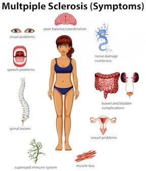 Een onderwijsposter van multiple sclerose