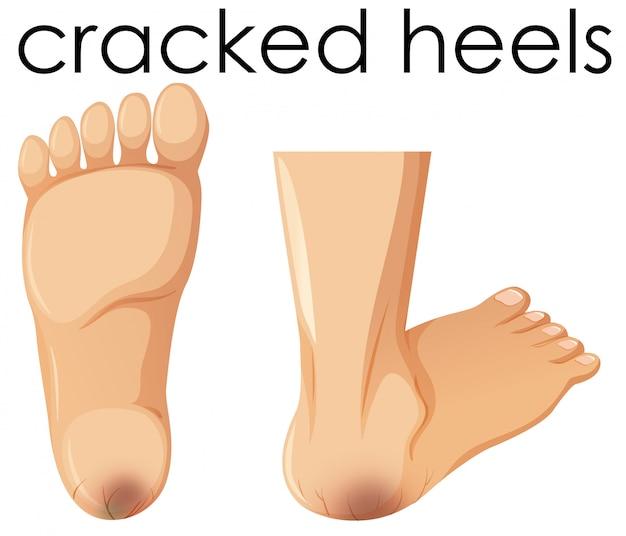 Een set van menselijke voet met gebarsten hielen