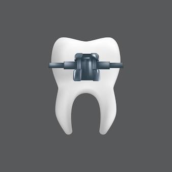 Een tand met een metalen beugel. orthodontische behandeling concept. realistische afbeelding van een tandheelkundig keramisch model geïsoleerd op een grijze achtergrond