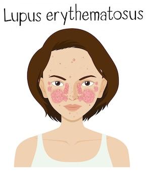 Een vector van lupus erythematosus