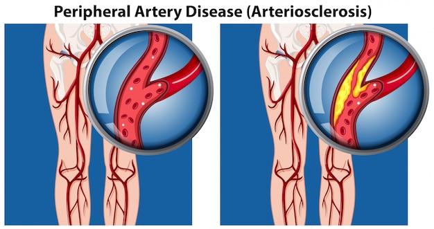 Een vergelijking van perifere aderenziekte