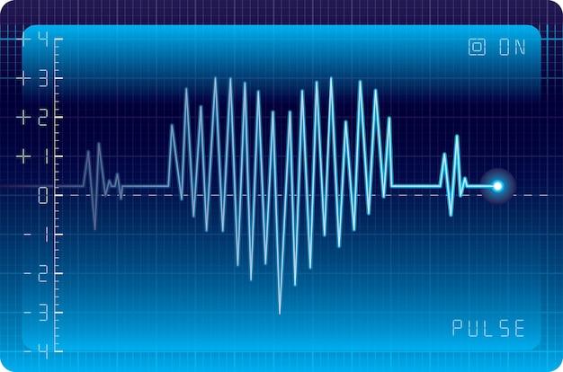 Elektrocardiogram met hartvorm