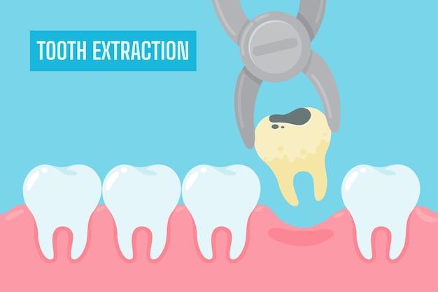 Extractie van tanden. cartoon gele tanden met tandsteen en tandplak verwijderd uit de mondholte.