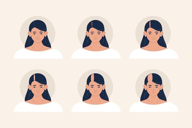 Flat-hand getekend haarverlies stadia illustratie