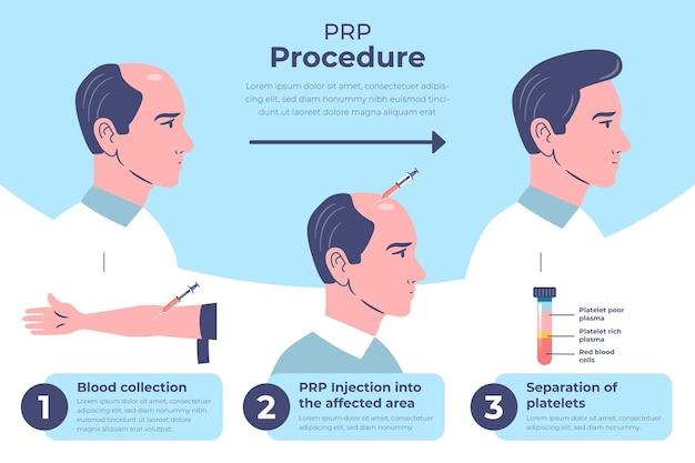 Flat-hand getekende prp-procedure infographic