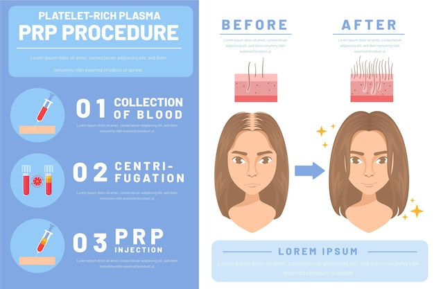 Flat-hand getekende prp-procedure infographic