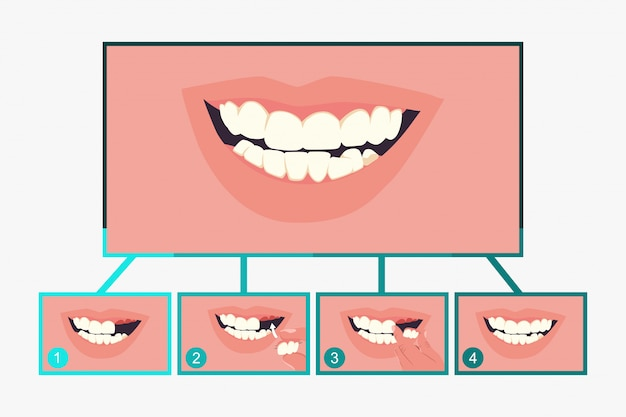 Gedeeltelijke kunstgebit tandheelkunde