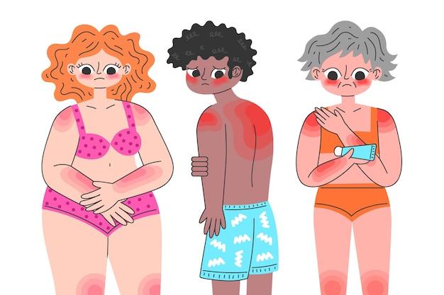 Geïllustreerde platte mensen met een zonnebrand