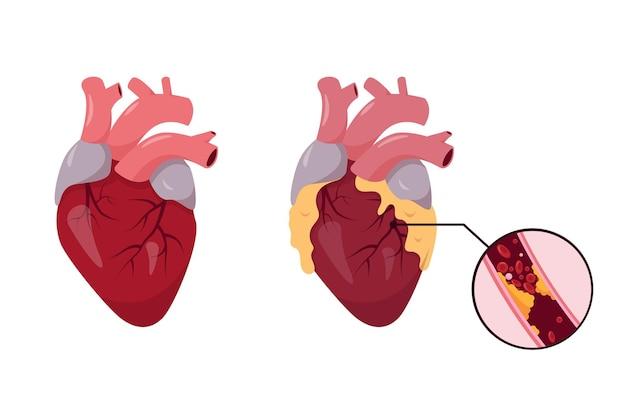 Gezond en ongezond menselijk hart. ischemische ziekte. verstopte kransslagader met atherosclerose.