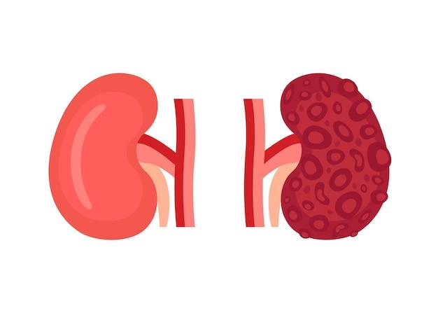 Gezonde nier en ongezonde ziekte nier met polycyste controleer de gezondheid van het nierorgaan