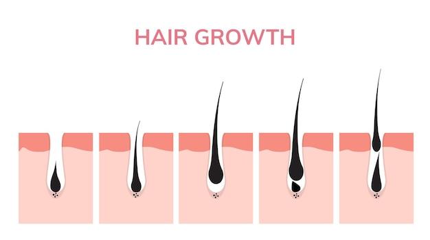 Haargroeicyclus huid. follikel anatomie anagene fase, haargroei diagram illustratie.