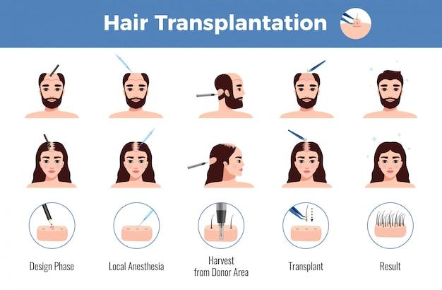 Haartransplantatie voor mannen en vrouwen met stadia van operatie infographics op wit