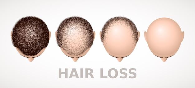 Haaruitval set van vier stadia van alopecia