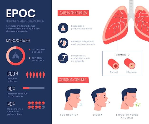 Hand getekend epoc infographic