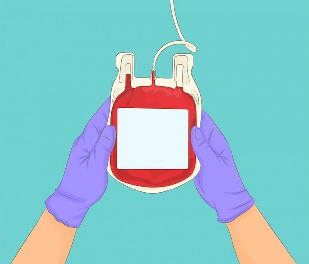 Handen die zorgvuldig een zak donorbloed houden