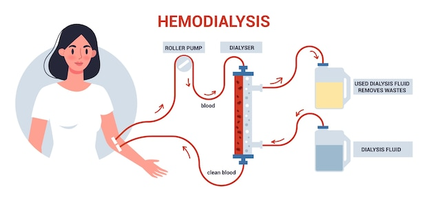 Hemodialyse voor infographics van de nierbehandeling. vrouw krijgt een nierziekte-behandeling. patiënt met een interne injectie.