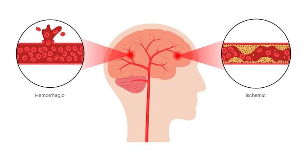 Herseninfarct ishemisch en hemorragisch