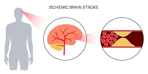 Herseninfarct ishemisch