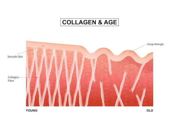 Huidcollageen door de levensfasen collageen in jonge en oude huid