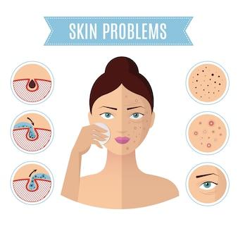 Huidproblemen oplossen, behandeling van acne en reinigingsporie voor perfecte damesgezichtspictogrammen