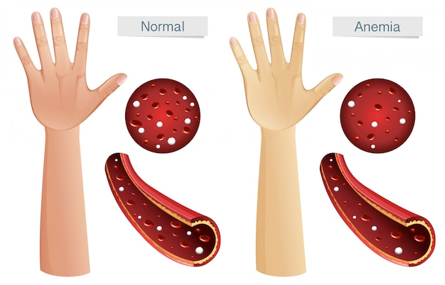 Human anatomy vector of anemia