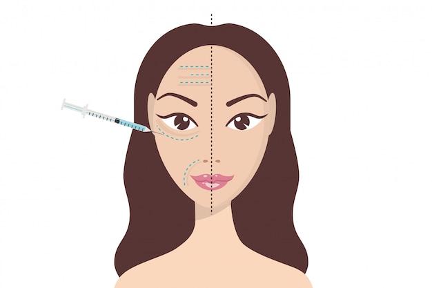 Hyaluronzuur-gezichtsinjectie