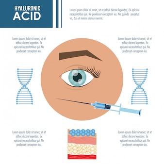 Hyaluronzuur vulmiddel injectie infographic