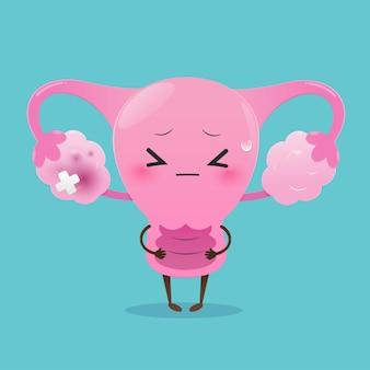 Illustratie baarmoeder ontstoken eierstok