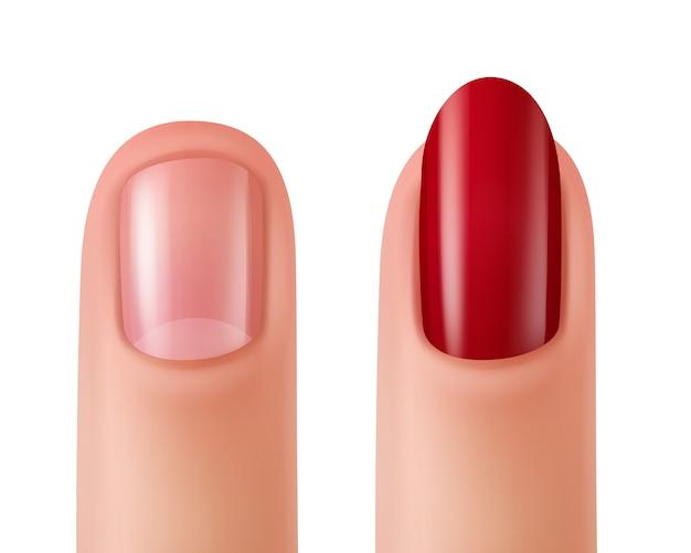 Illustratie van nagels met nagellak en zonder nagellak