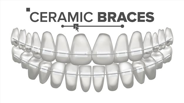 Illustratie van tanden set met metalen beugels