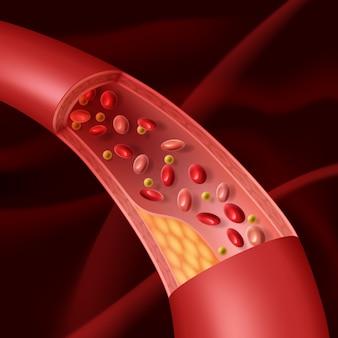Illustratie van vasculaire atherosclerose opengewerkt aanzicht van opgehoopte plaque in een aangetast bloedvat.