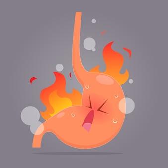 Illustratie van zure terugvloeiing of zuurbranden