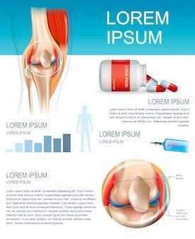 Infographic behandelingsmethode reumatoïde artritis