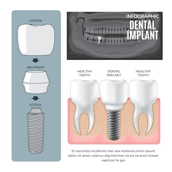 Infographic informatie tandheelkundig implantaat